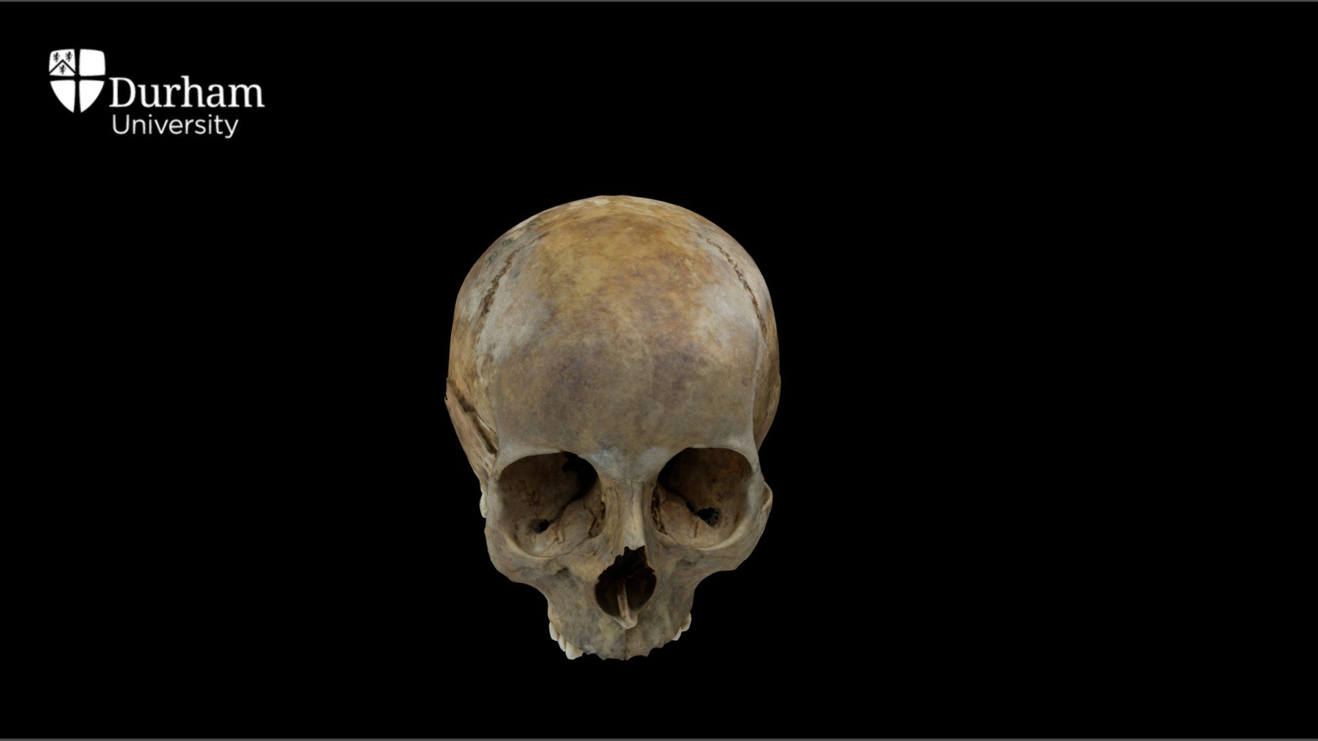 Female cranium with annotations - 3D model by Durham Archaeology (@DurhamArchaeology)