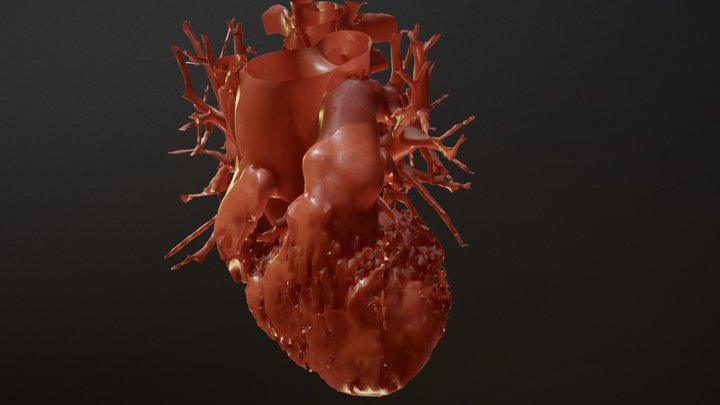 Computed Tomography Reconstruction of Heart V2 3D Model