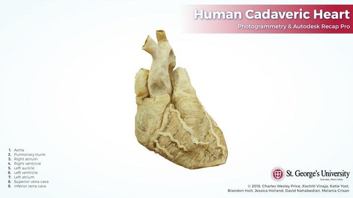 Human Plastinated Heart: Photogrammetry 3D Model