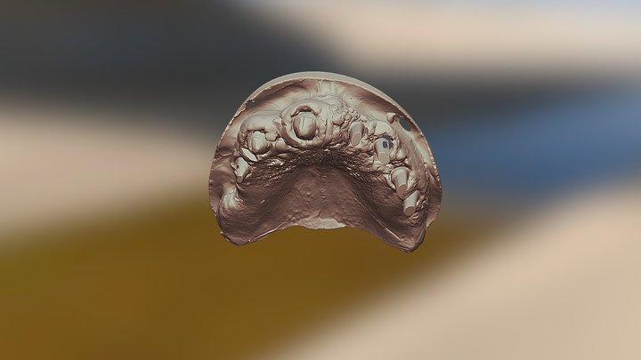 Зубы 15 22 23 25 26 - Вся челюсть 3D Model