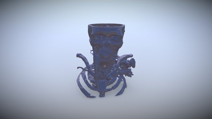 Giant ICA Aneurysm 3D Model