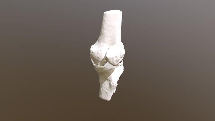 Arthrosis_bone 3D Model