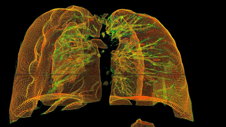 CT scan lung 3D Model