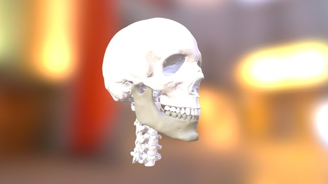 Jaw Surgery + Facial Implants (Post Jaw Surgery) 3D Model