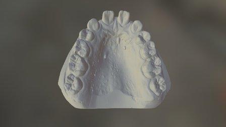 AP Upper 3D Model