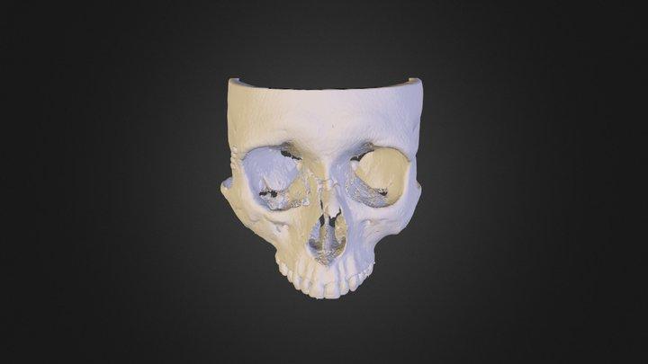 Maxilla 3D Model