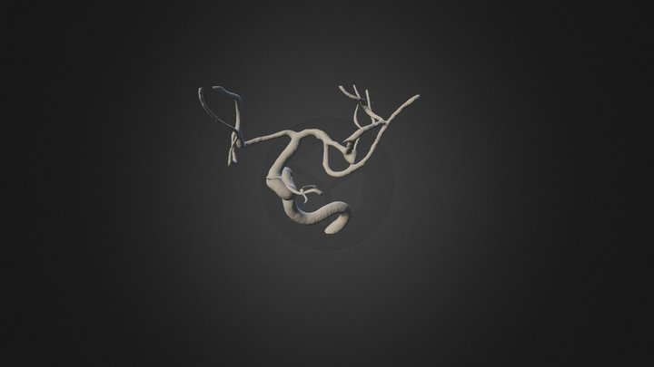 Left ICA (MCA Aneurysm) 3D Model