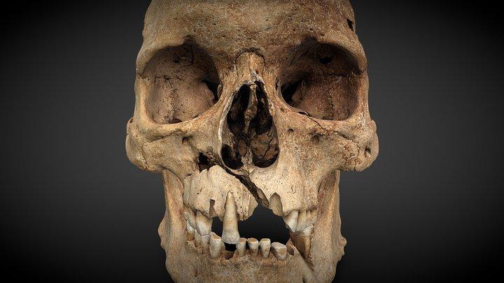 Cranium with injuries - 260727 3D Model