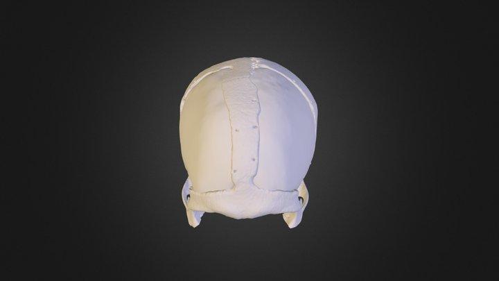 Cranioplasty 3D Model