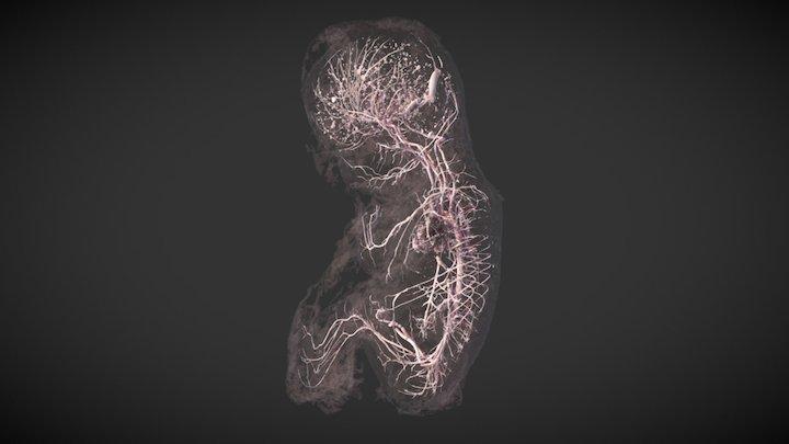 Injected human foetus - 14 weeks old - MicroCT 3D Model
