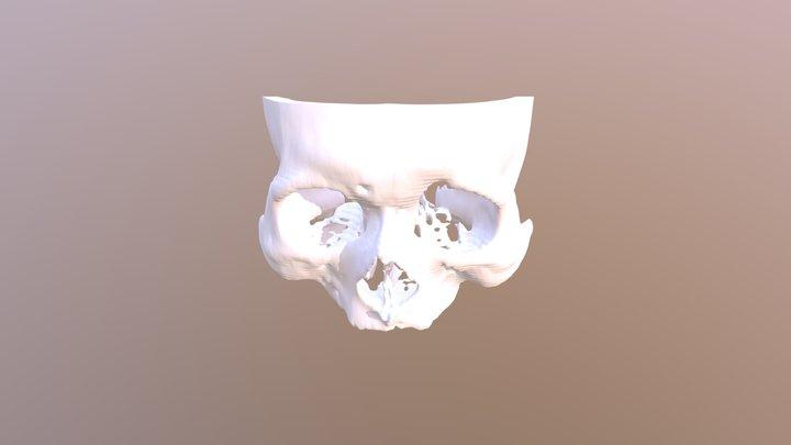 Recurrent frontal sinusitis - Ant. Skull 3D Model