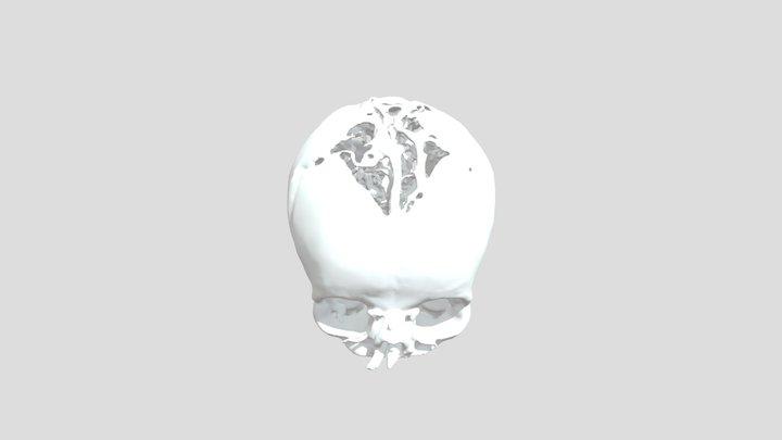 Zyg 3D Model