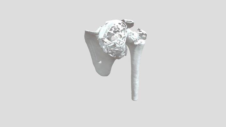 Shoulder 3D Model