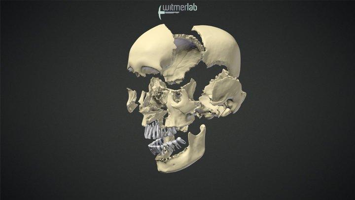 Visible Interactive Human - Exploding skull 3D Model