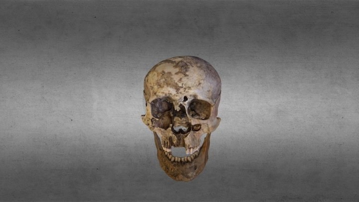 Skull and mandible 3D Model