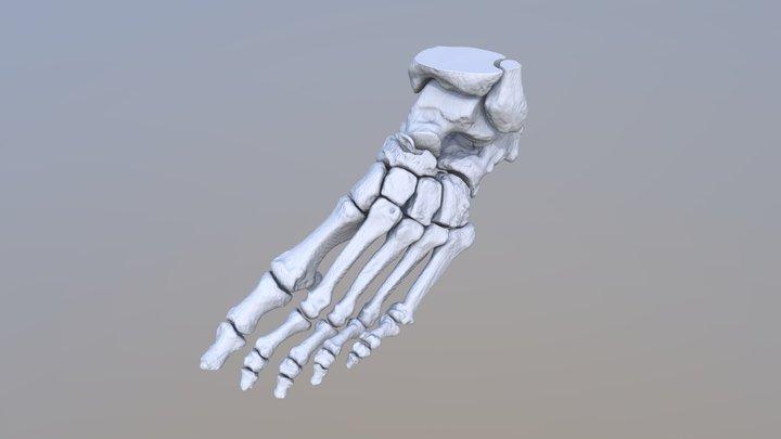 marginal fracture of the navicular bone 3D Model