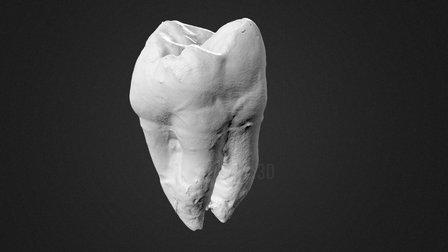 Tooth 3D Scan 3D Model
