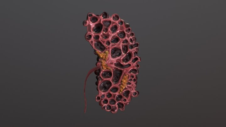 Longitudinal section through a Polycystic Kidney 3D Model