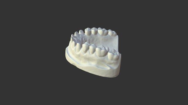Dental model scanned with EinScan-S 3D Model