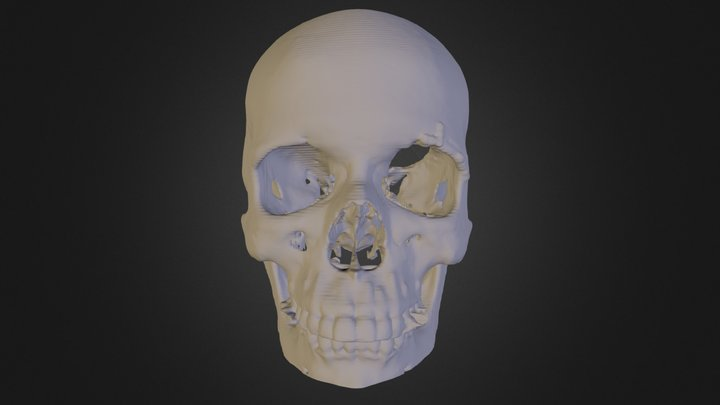 Anterior Skull Section with tumor removed. 3D Model
