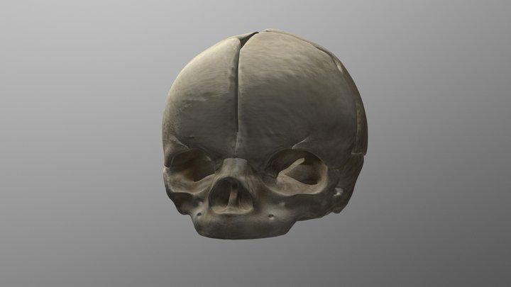 Human Fetal Skull 3D Model