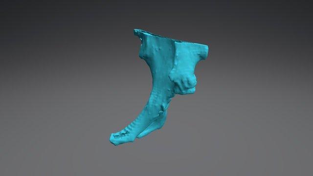 BM Pelvis 3D Model