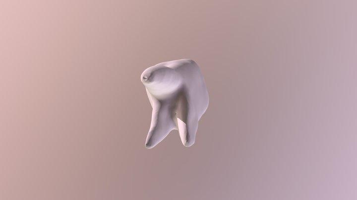 上颌第一磨牙 3D Model