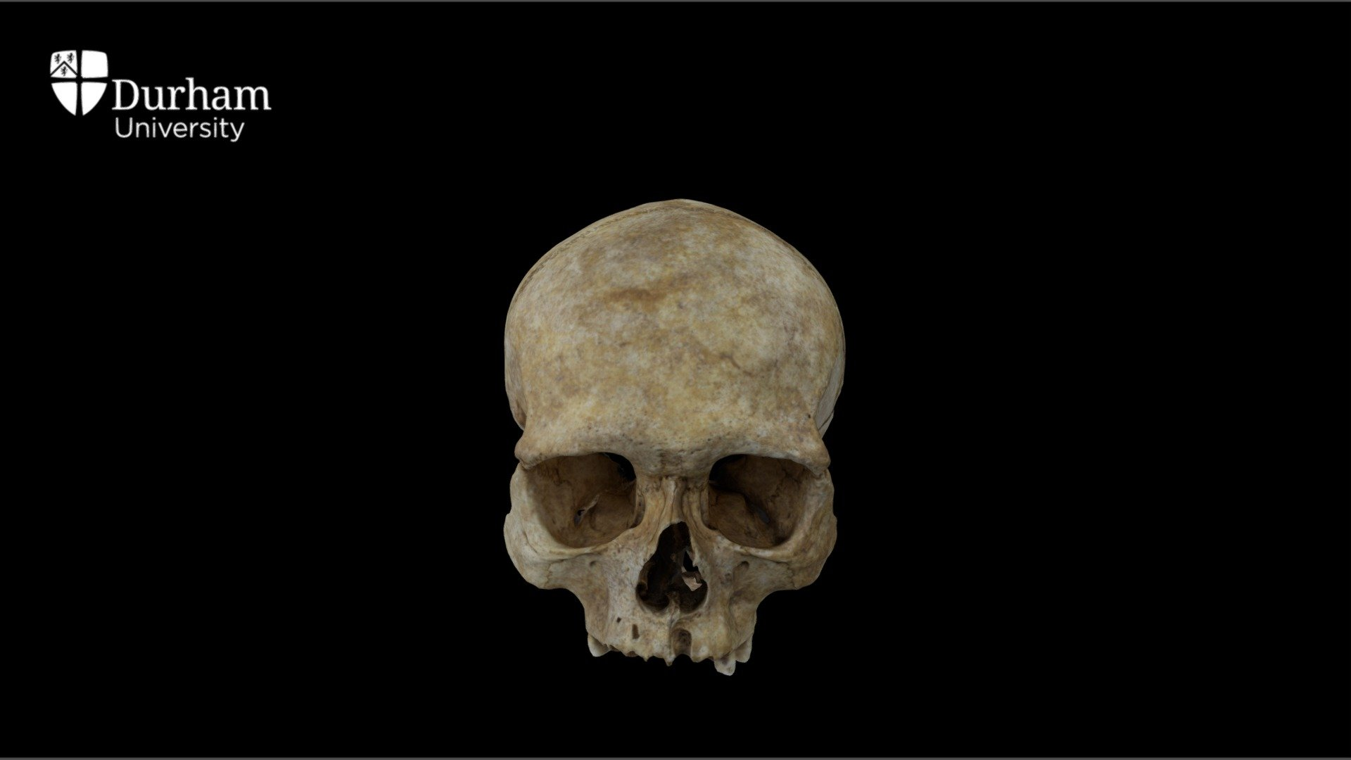 Male cranium with annotations - 3D model by Durham Archaeology (@DurhamArchaeology)
