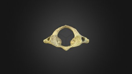 First Cervical Vertebra 3D Model