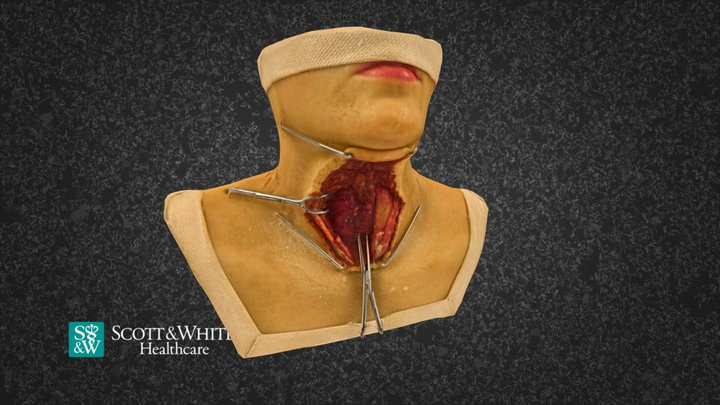 Total Thyroidectomy Surgery - 03 3D Model