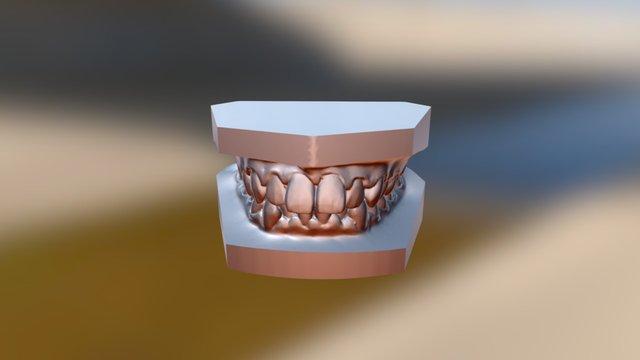 矯正前0602 3D Model