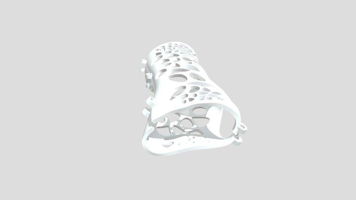 ARM SPLINT - 3D PRINT 3D Model