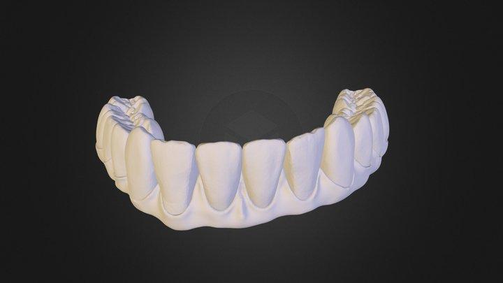 Prettau Design Lower Arch 3D Model