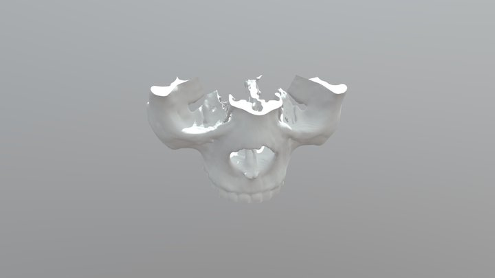 Lacrimal duct anatomy model 3D Model
