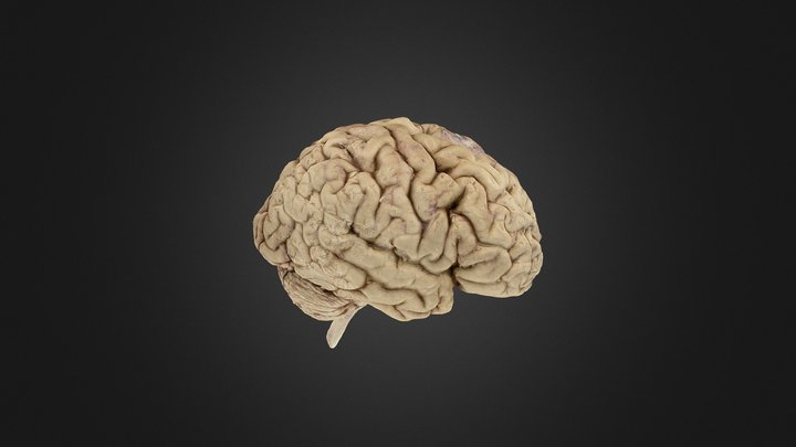 Brain Before Sections (Anterior Surface Labels) 3D Model