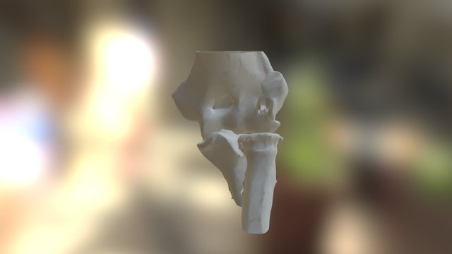 Elbow - olecranon fracture 3D Model