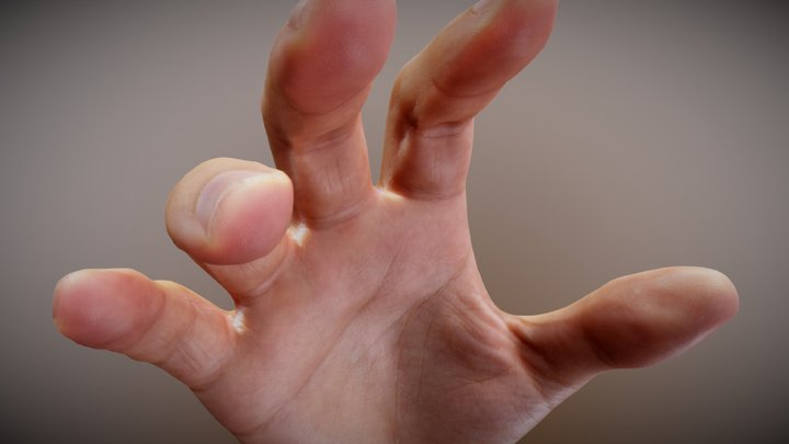 Hand scan for medical purposes 3D Model