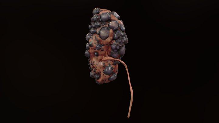 Polycystic Kidney 3D Model