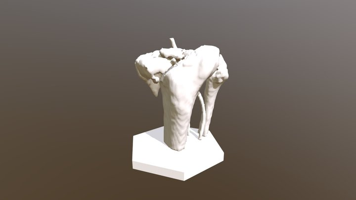 Tibia Plateau Fracture with Arteries 3D Model