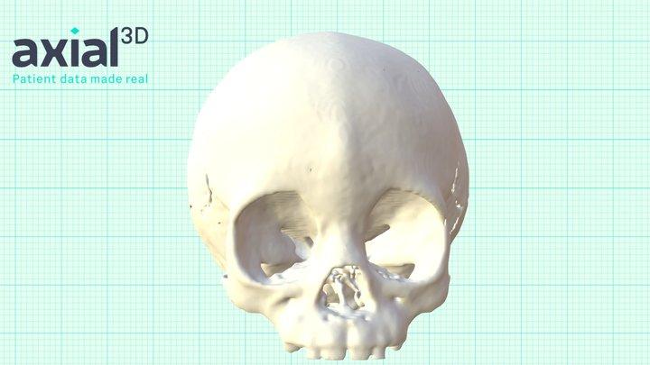 P00252 3D Model