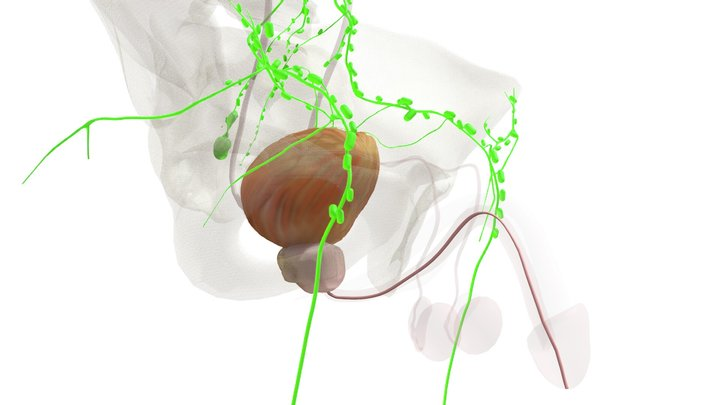 prostaatkanker 3D Model