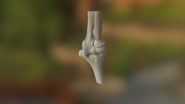 Elbow - proximal radial fracture 3D Model