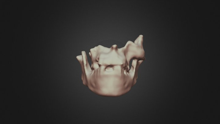 Oplontis B - Skull 11 3D Model