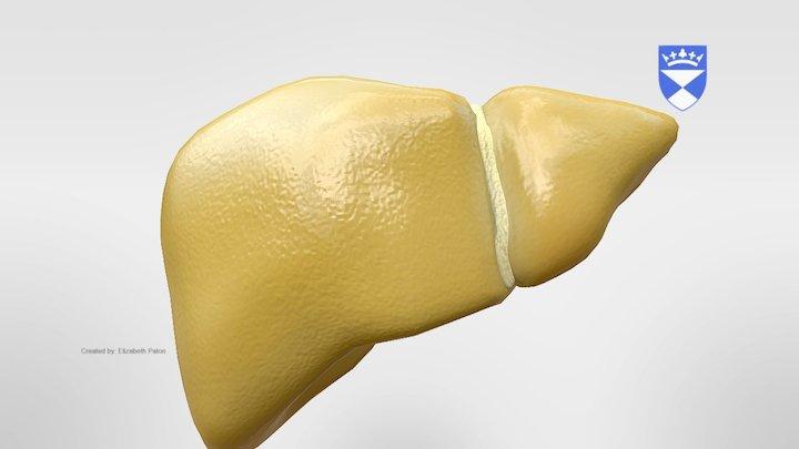 Fatty Liver 3D Model