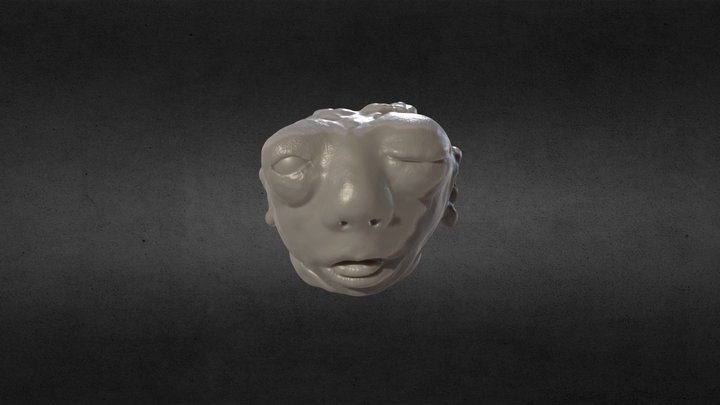 Anencephalic Phoetus (Head only) 3D Model