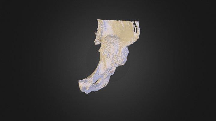 Hip Revision Model 3D Model