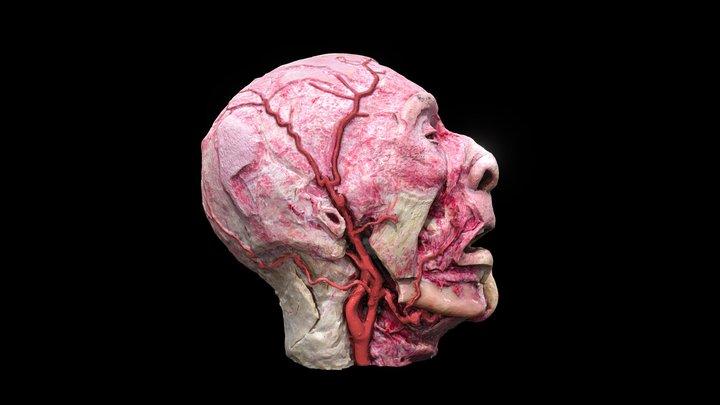 External Carotid artery - duplicated version 3D Model