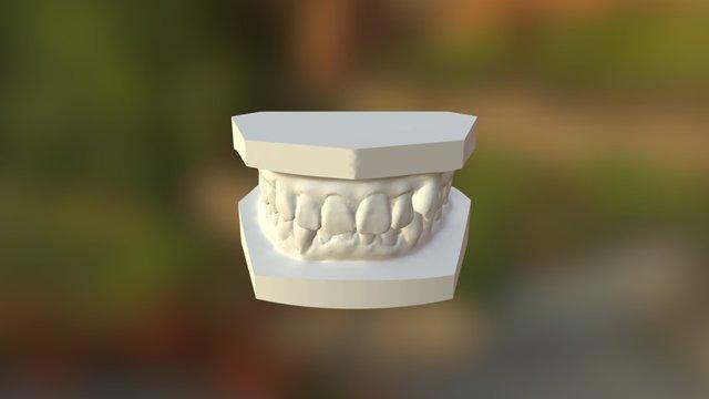 曾雯萍  矯正前 3D Model