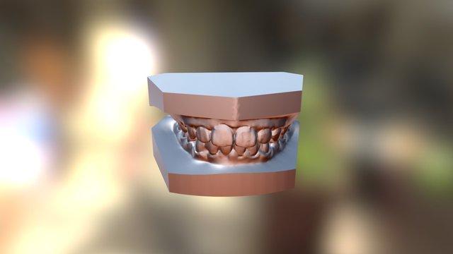 矯正前 3D Model