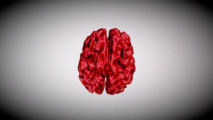 Alzheimer's Brain 3D Model